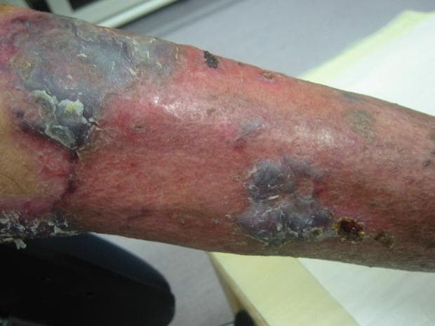 Пустулозна форма на гангренозна пиодермия