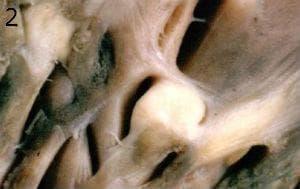 микроскопско изследване на рабдомиом