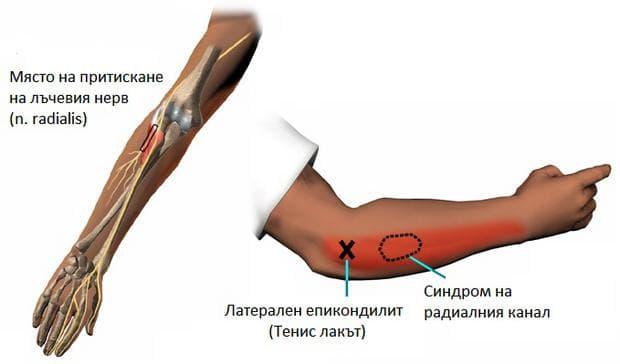 Синдром на радиалния канал