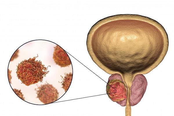 a prosztatitisből süllyedhet 5 hetes terhesség vérzéssel