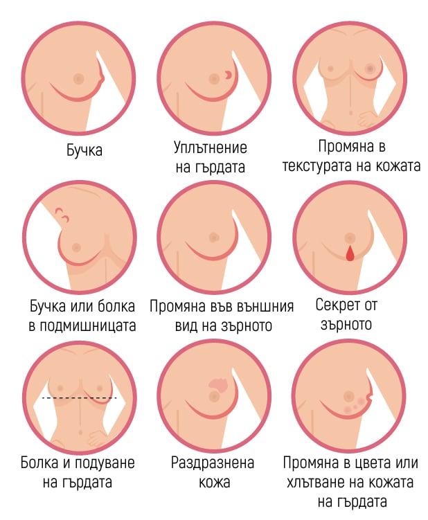 Симптоми на рак на гърдата