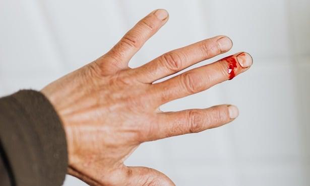 Рана на ръката