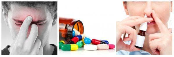 Ранно лечение на синузит за намаляване риска от усложнения