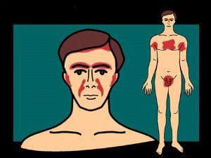 Разпределение на лезиите при себореен дерматит