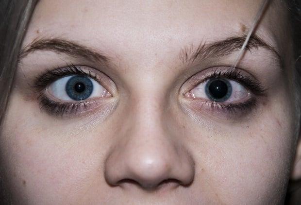 Разширена зеница на едното око