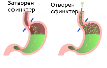 киселини в стомаха