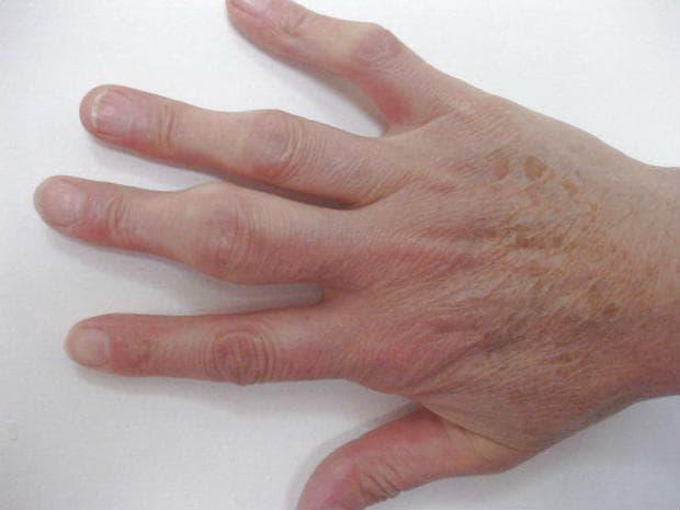 Серопозитивен ревматоиден артрит