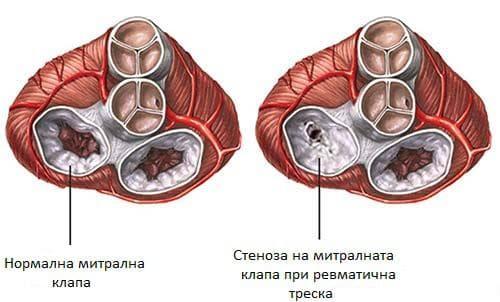 Стеноза на митрална клапа при ревматична треска