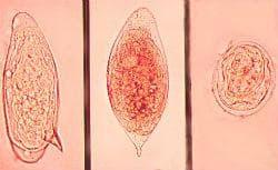 Schistosoma - яйца