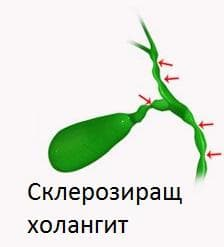 Склерозиращ холангит