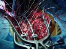 оперативно лечение на сколиоза