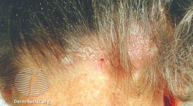 Симптоми на себорея при възрастни