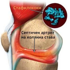 Бактериален артрит