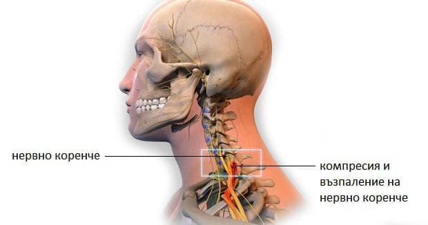 шиен радикулит - прищипване на нервно коренче