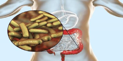 intestinal_infection