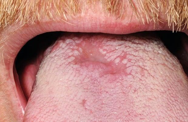 Бели петна по езика при сифилис
