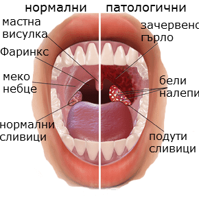 симптоми на заболяването