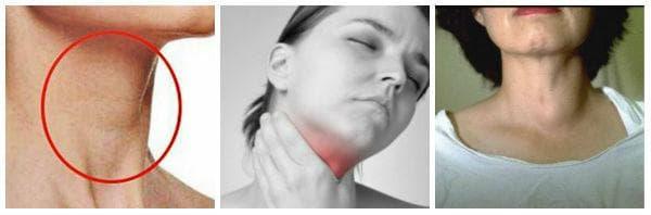 Симптоми при различните болести на щитовидната жлеза