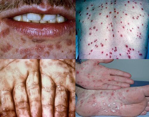 Симптоми на сифилис