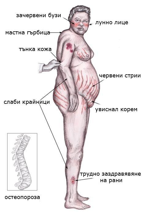 синдром на cushing с хипофизарен произход