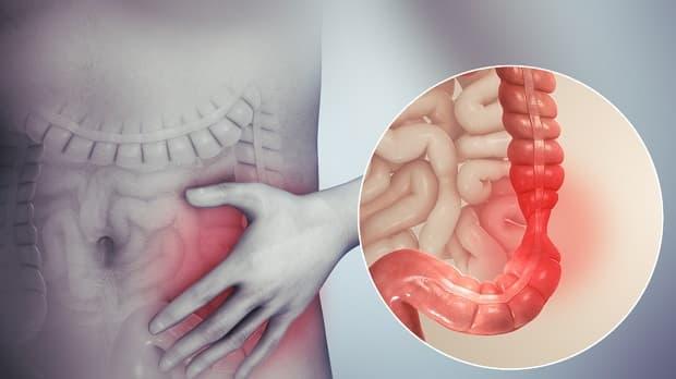 Синдром на дразнимото черво