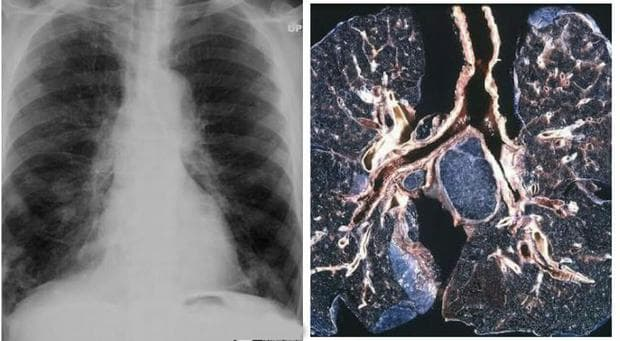 ревматоидна болест със засягане на белия дроб