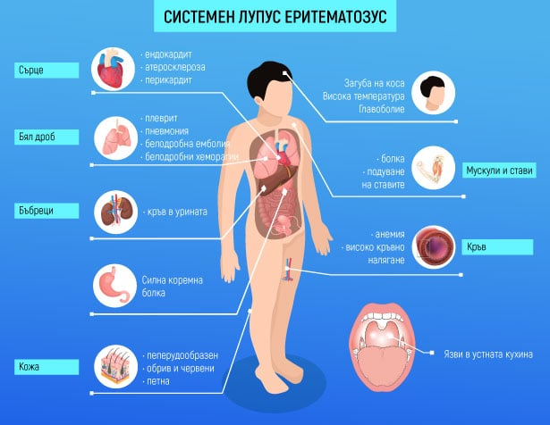 Системен лупус еритематозус