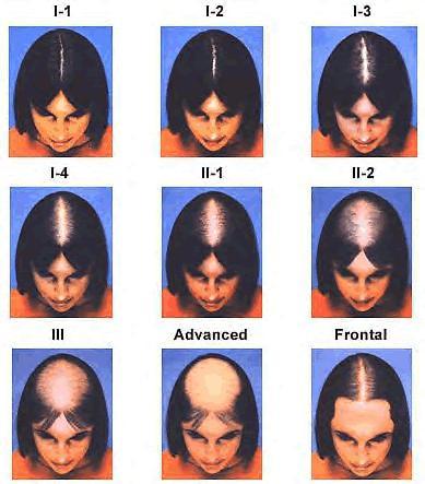 Скала на косопад при жени