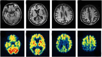 сканиране на мозък с Алцхаймер