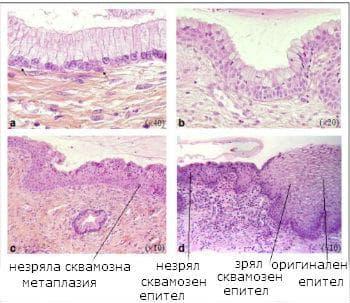 сквамозна метаплазия на маточната шийка
