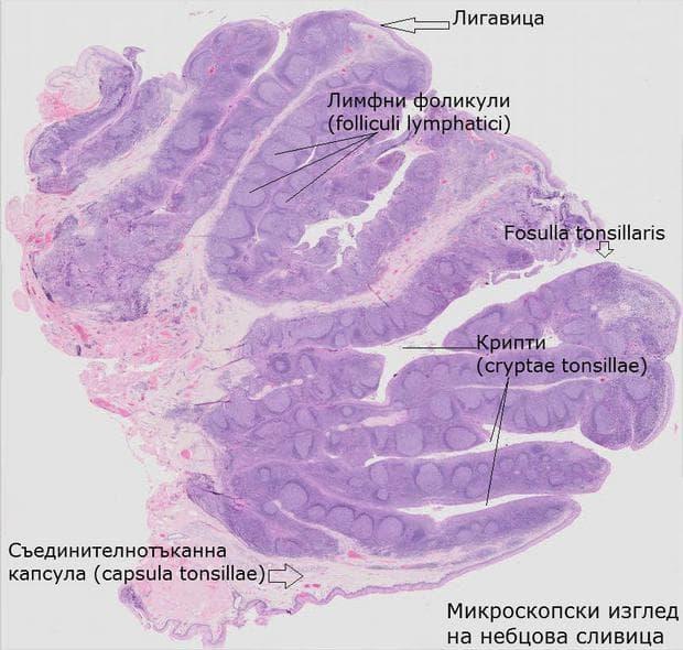 Микроскопска картина на небцова сливица