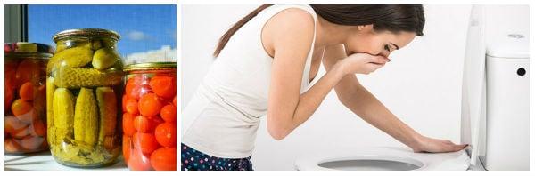 Спешни първи мерки при ботулизъм