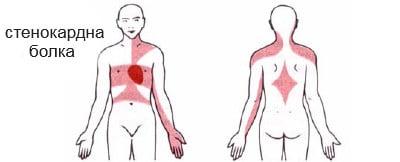 симптоми при стенокардия