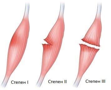 Степени на разтежене на мускул при диагностика