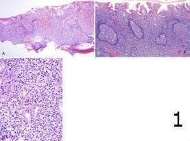 микроскопско изследване на стомашен лимфом