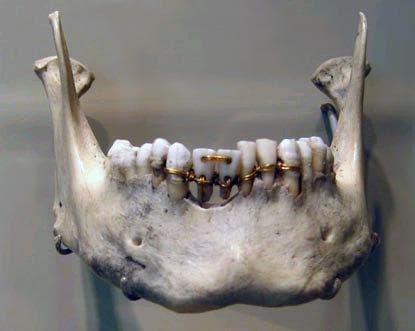 Мандибула с протези от древен Египет