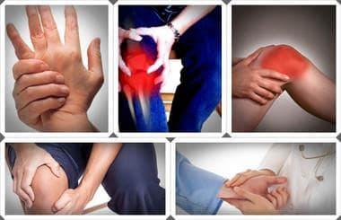 други системни увреждания  на съединителната тъкан