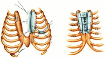 Операция на гръдна кост