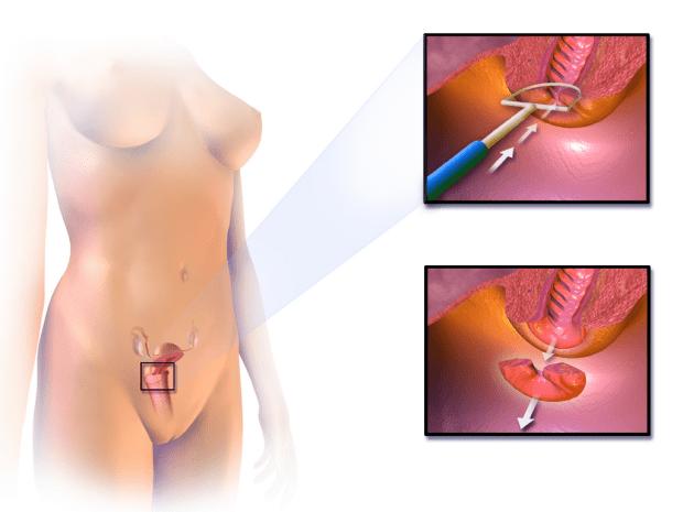 Същност на бримкова електрохирургична ексцизия (LEEP-процедура)