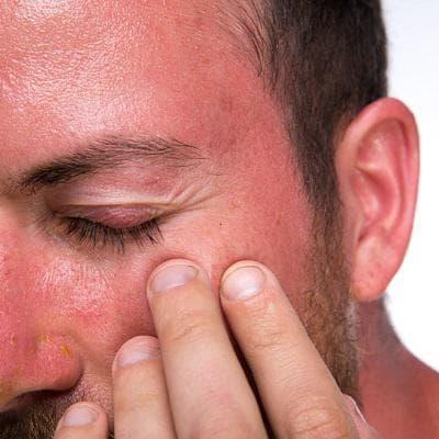 Зачервяване при свръхдоза ниацин