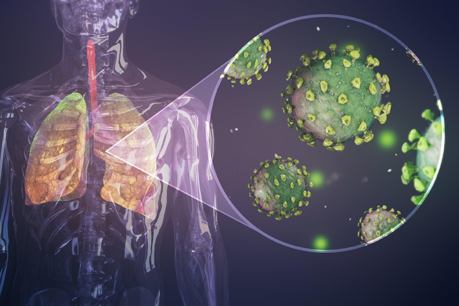 При някои болни с коронавирусна инфекция се наблюдава несъразмерна реакция на имунната система, като трудно може да се посочи конкретна причина за това. Неочакваната, прекалено мощна имунна реакция при наглед здрав човек може да завърши фатално.