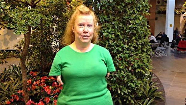Възрастна жена с последствия от препарата Талидомид