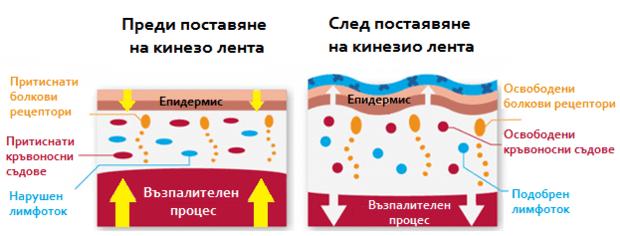 Как действа кинезио лентата