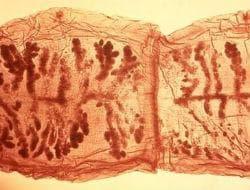 Тениоза, неуточнена - микроскопия на проглотид