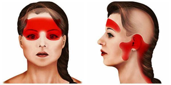 Тензионно главоболие