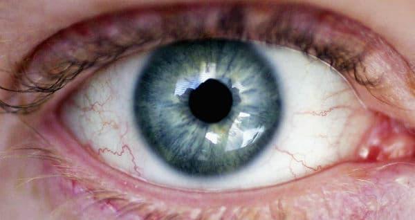 Трахома: заразяване, симптоми, рискове, усложнения