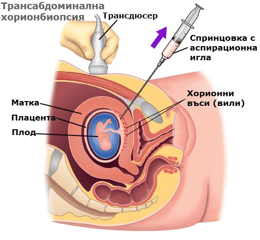 Трансабдоминална хорионбиопсия