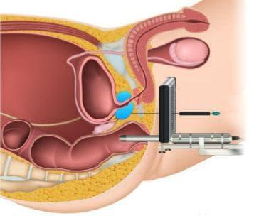 Трансперинеална биопсия на простатата