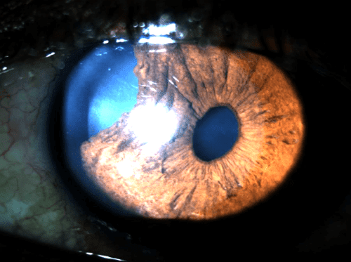 Травматична глаукома