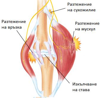 Разтежение на мускул, сухожилие и връзки